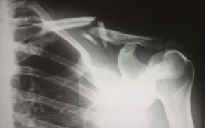 Common causes of Massachusetts workers compensation accidents
